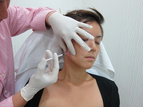 This patient is receiving Botox® in her masseter muscle to relax her face, helping with her Bruxism.